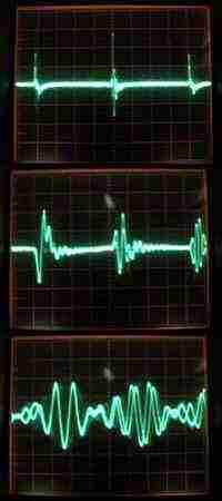 http://ua3vvm.qrz.ru/qrss-tech/noise_blanker/pulses00.jpg